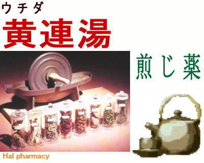ウチダ 黄連湯 煎じ薬