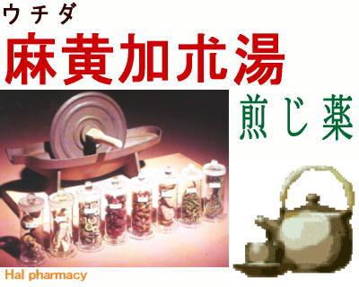 ウチダ 麻黄加朮湯 煎じ薬