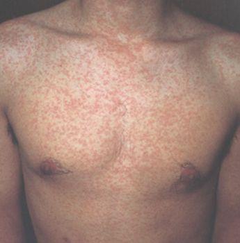カゼのひき始めや、発疹に用いる