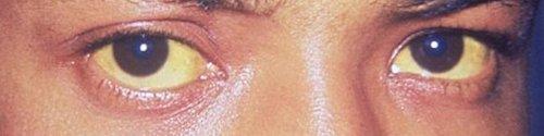 眼球結膜の黄疸