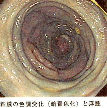 粘膜色調変化