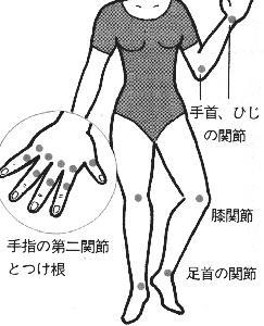 関節痛の起こる位置