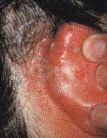 分泌物が多い慢性の湿疹
