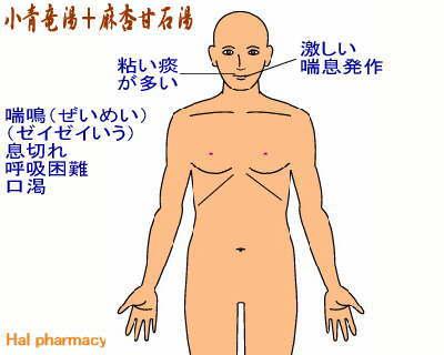 小青竜湯+麻杏甘石湯